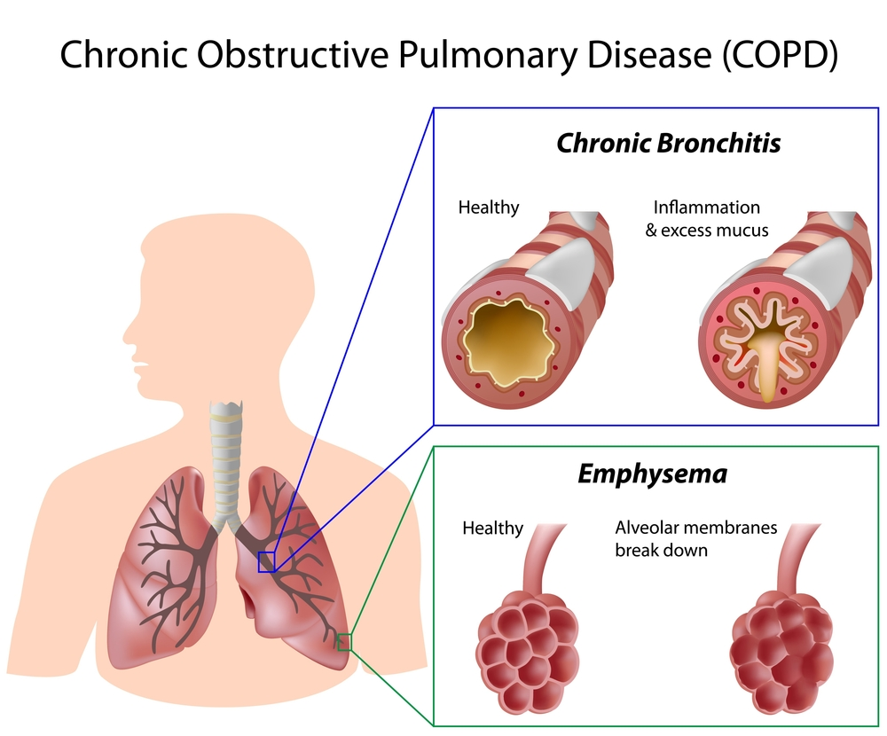Chronic Obstructive Pulmonary Disease Redcare